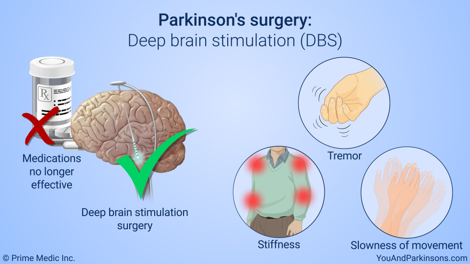 Treatment And Management Of Parkinson S Disease